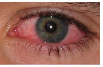 Ipnosi e autocontrollo - Infiammazioni agli occhi: implicazioni emotive
